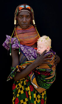 Los albinos y la brujería muti